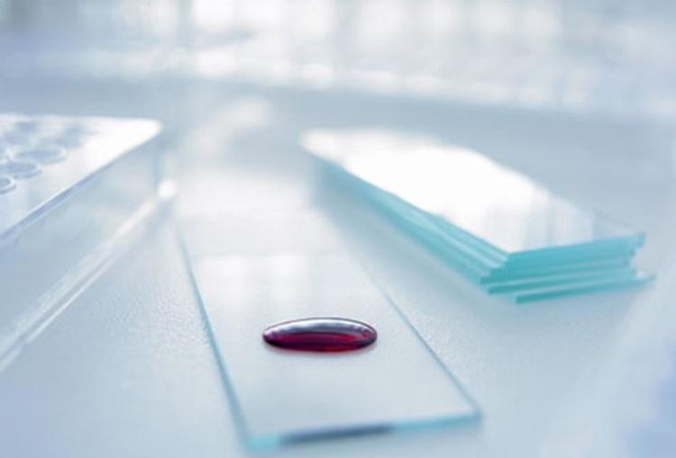 Сколько делается биохимический анализ поликлинике. Сколько дней делается анализ биохимического состава крови, и для чего он нужен? Подготовка к анализу