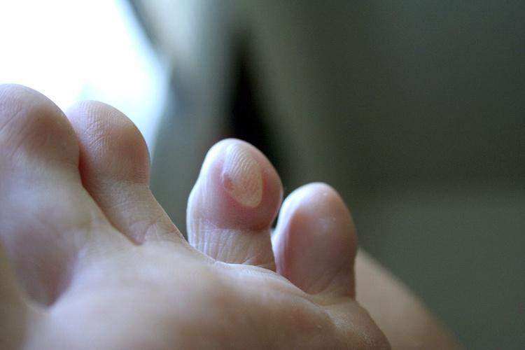 Мозоли между пальцами на ногах как избавиться