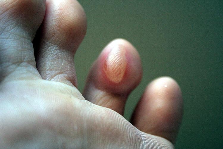 Водяной мозоль на ноге thumbnail