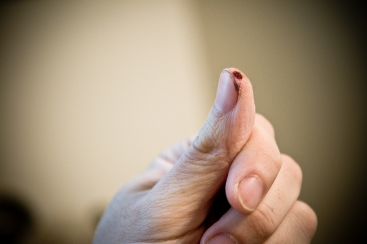 Как убрать белые пятна на коже после удаления родинки thumbnail