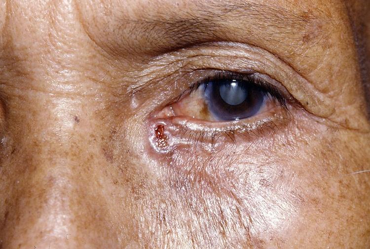 Лечение базалиомы кожи без рецидива – фотодинамическая терапия базалиомы
